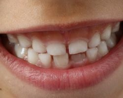 Your genetic makeup has little impact on your dental health